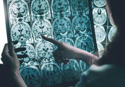 Cannabis como tratamiento contra la enfermedad de Alzheimer
